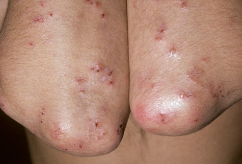 4 phototake_rm_photo_of_celiac_rash
